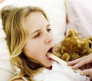 Лечение ангины дома