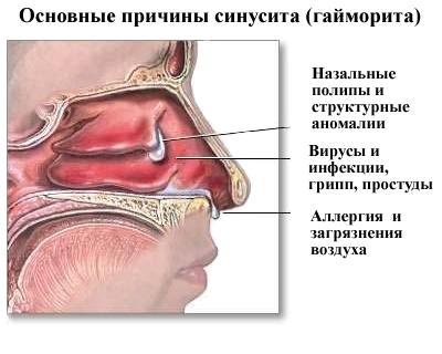 хронический гайморит головокружение