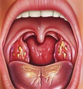 Симптоматика ангины