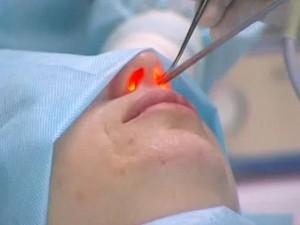 Лечение лазером при гайморите